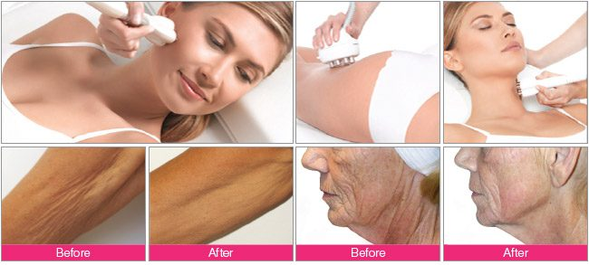 Venus Freeze A New Approach To Anti Aging Spa Munari